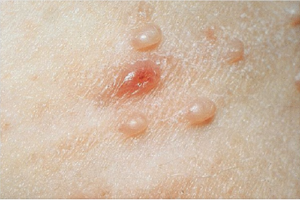 molluscum treatment