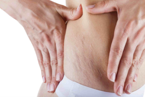 stretch marks reduction