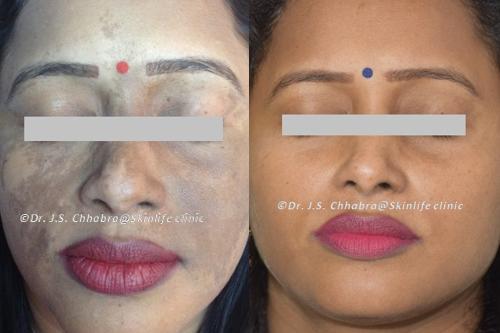 birthmark reduction treatment