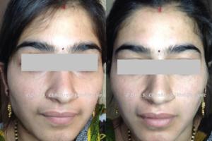 laser hair reduction treatment