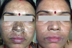 pigmentaion reduction treatment