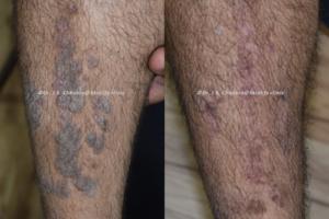 eczema treatment indore