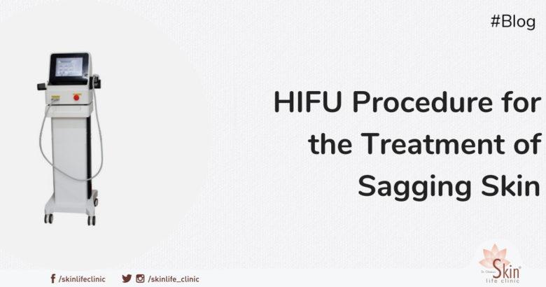 HIFU Procedure for the Treatment of Sagging Skin
