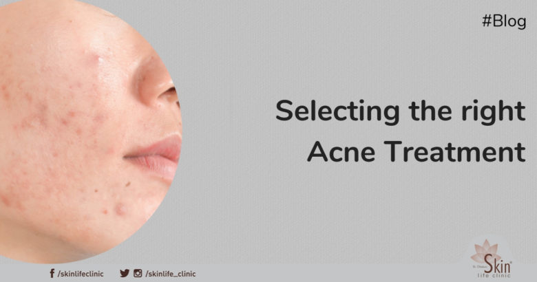 Selecting the Right Acne Treatment