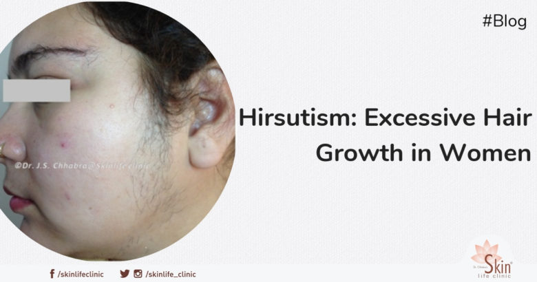 Hirsutism: Excessive Hair Growth in Women (Condition and Treatment)