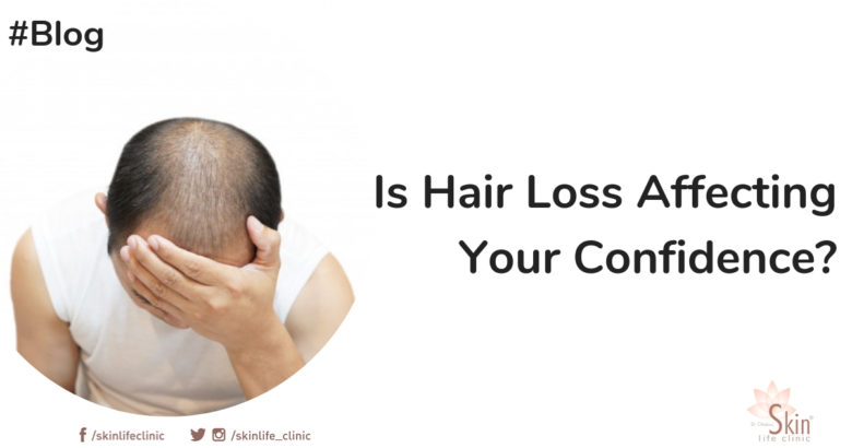 Is Hair Loss Affecting Your Confidence_
