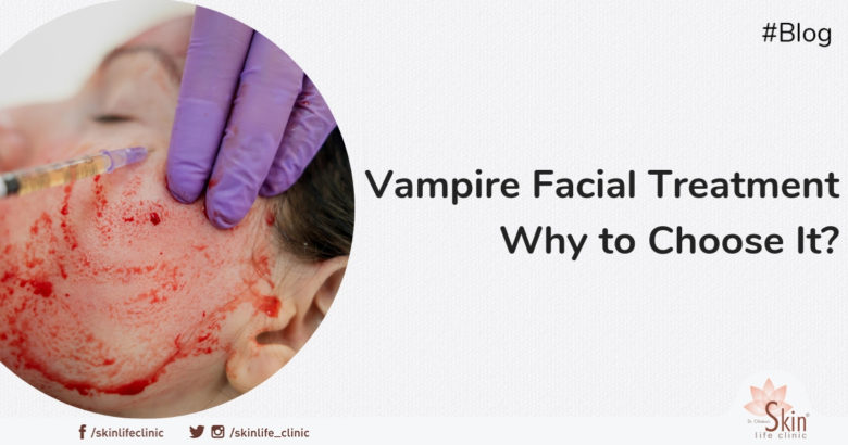 Vampire Facial Treatment - Why to Choose It