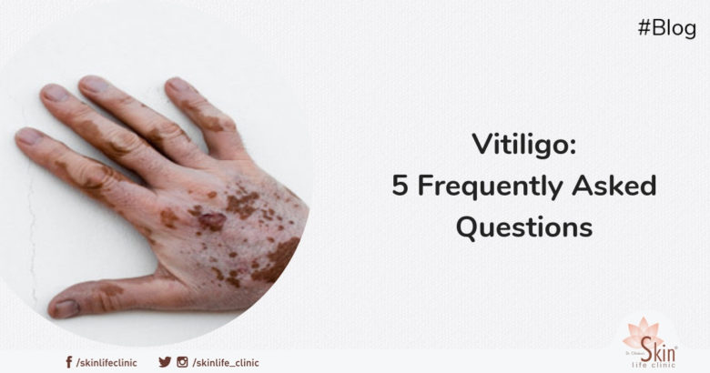 Vitiligo - 5 Frequently Asked Questions