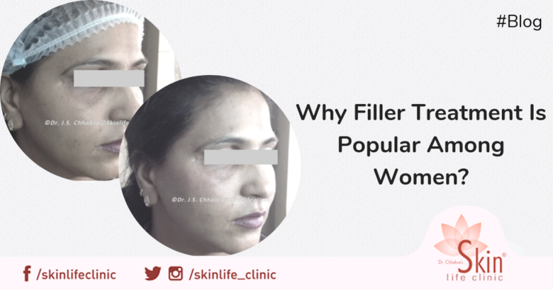 Why Filler Treatment Is Popular Among Women