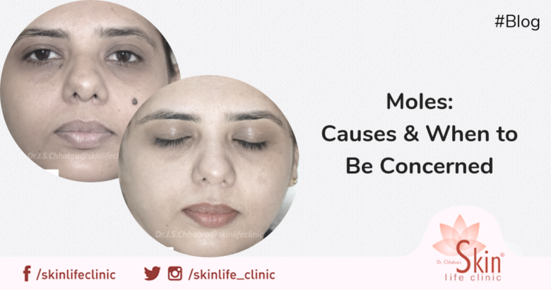 Moles Causes & When to Be Concerned