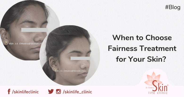 When to Choose Fairness Treatment for Your Skin