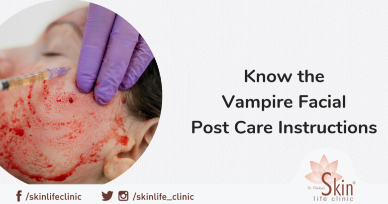 Know the Vampire Facial Post Care Instructions