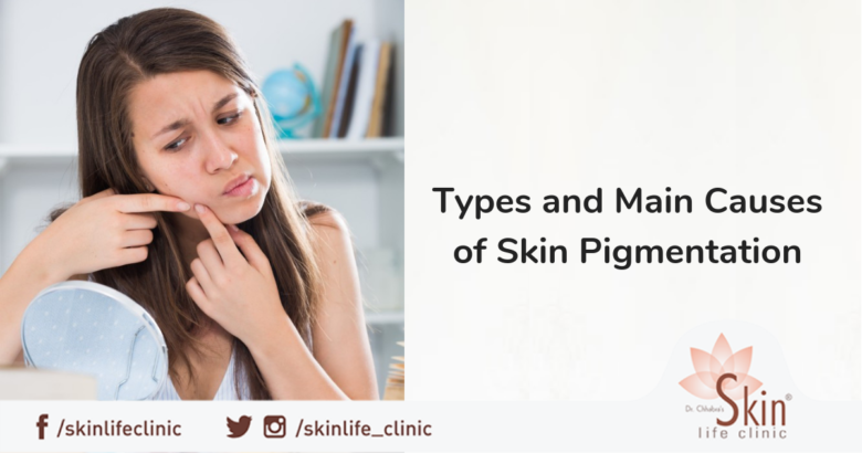 Types and Main Causes of Skin Pigmentation